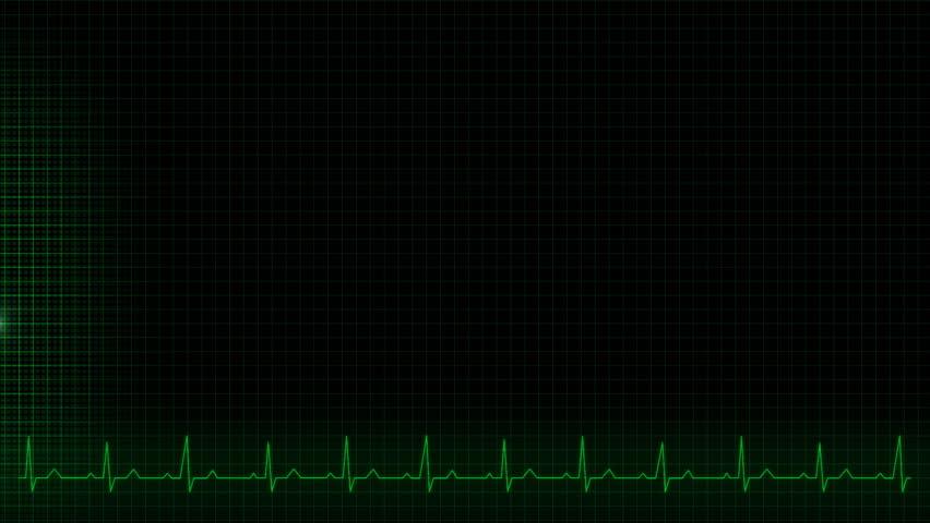 Illustration of a heartbeat impulse line