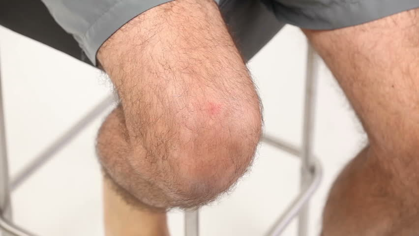 Man applying bandage to his knee - HD stock video clip