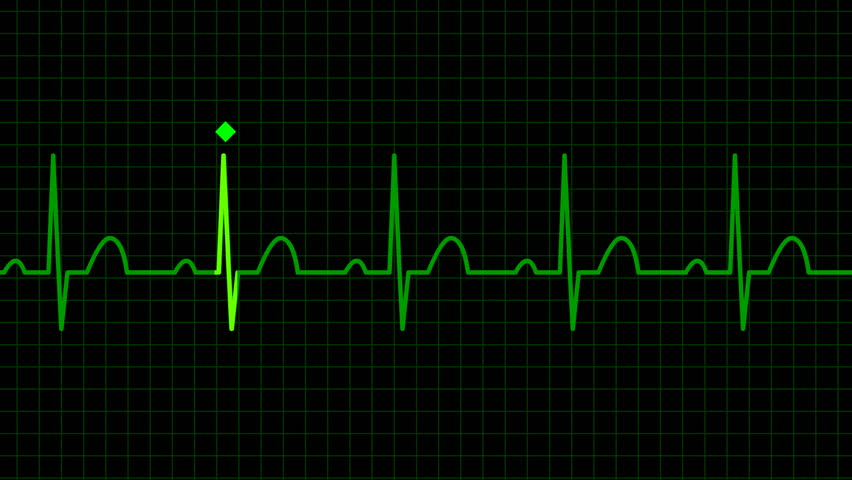seamless loop ecg ekg with graph - HD stock video clip