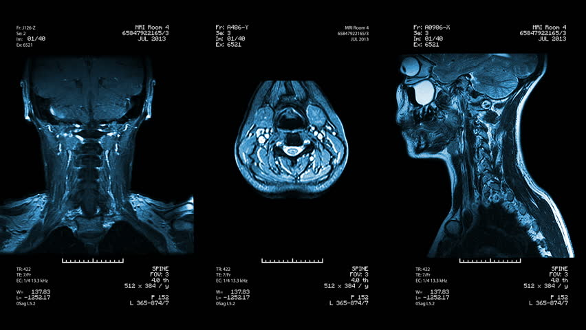 Three neck views of MRI scan. Loopable. Blue. See more color options in my portfolio.