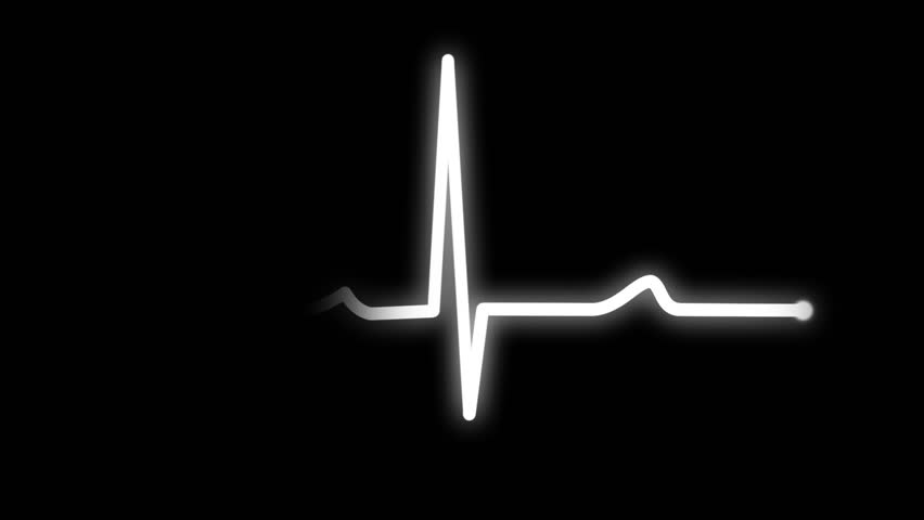 An animated heart monitor EKG flatlines.  With sound and alpha matte.