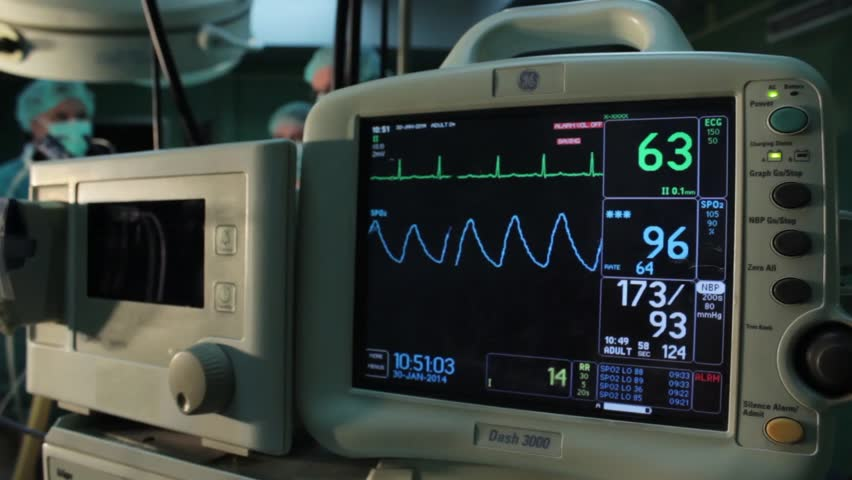 Ecg monitor patient's condition in operating room,close up heartbeat on screen,heart rate,blood pressure, in focus.Surgeons team performing operation in hospital operation theater,out of focus.