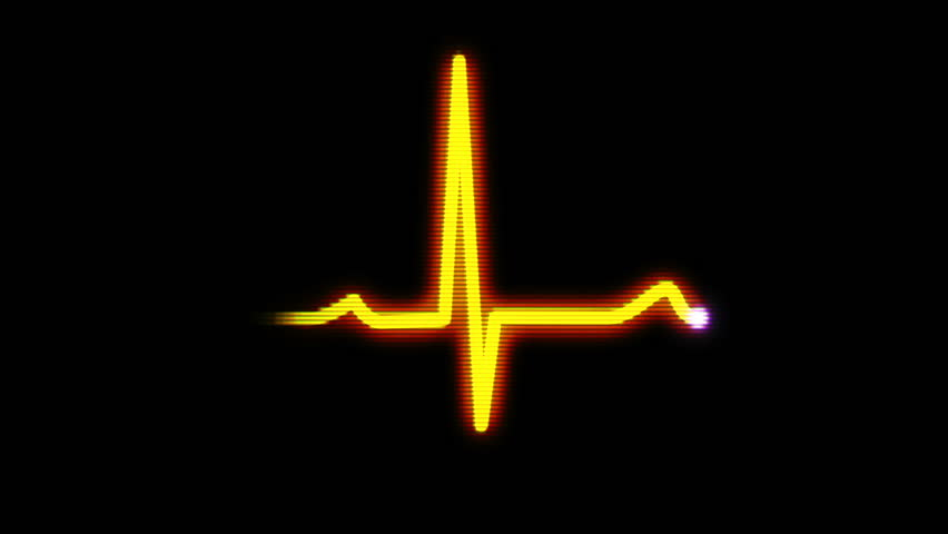 An animated 8-bit representation of a heart monitor EKG flatlines.  With sound and luma matte.